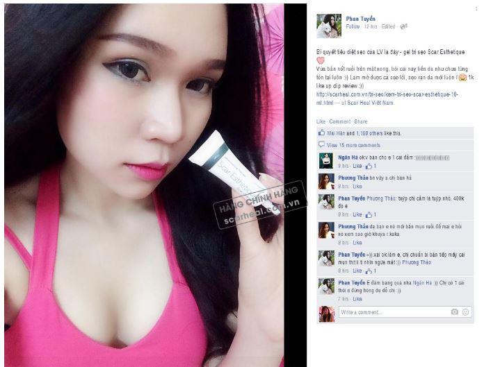 Hotgirl LV Babi cũng tin dùng sản phẩm kem điều trị sẹo Scar Esthetique 10ml