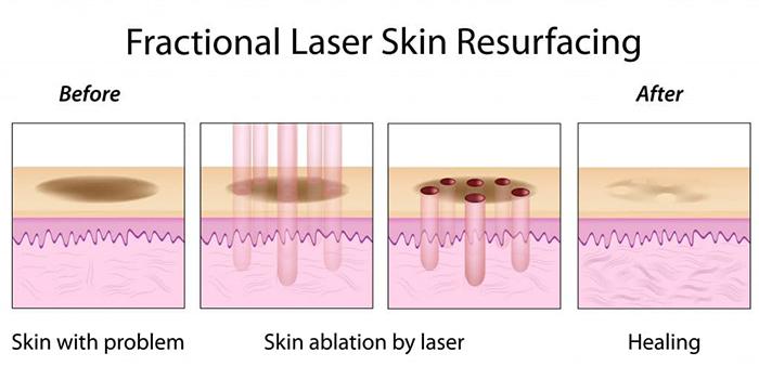 Điều trị sẹo rỗ bằng công nghệ Laser CO2 Fractional