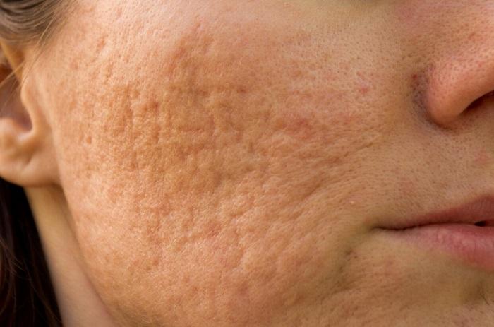 Sẹo rỗ rất mất thẩm mỹ và khó điều trị