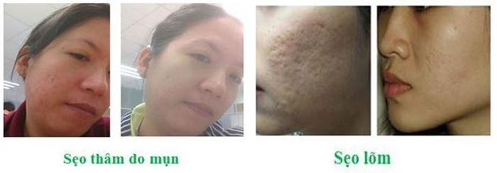 Những vết sẹo thâm/sẹo lõm đã được cải thiện rõ rệt sau một thời gian sử dụng kem trị sẹo Scar Esthetique