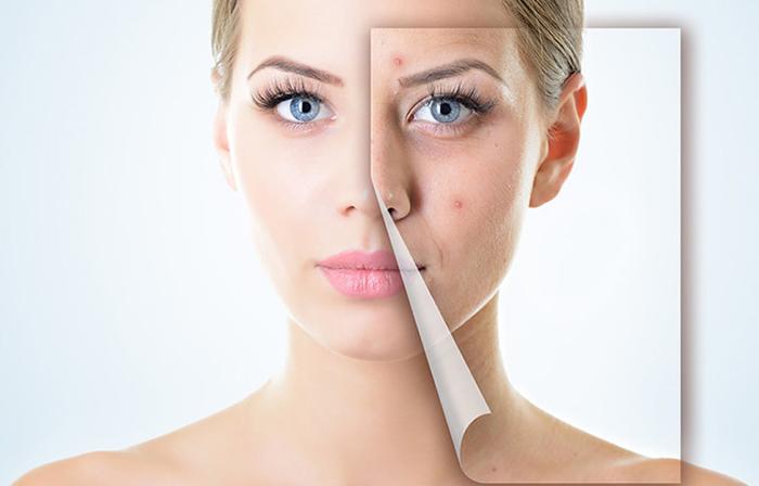 Đâu là những phương pháp điều trị sẹo lõm hiệu quả nhất?