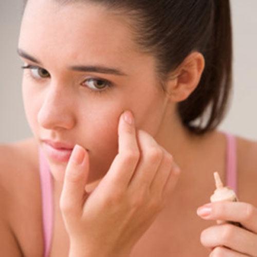 Dùng kem trị mụn không rõ nguồn gốc khiến bệnh tinh thêm trầm trọng hơn