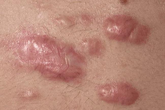 Sẹo lồi hình thành sau những vết thương phẫu thuật