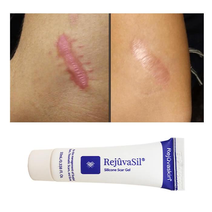 Hiệu quả điều trị sẹo lồi kỳ diệu của Scar Rejuvail chỉ sau một thời gian sử dụng