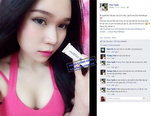 review kem trị sẹo scar esthetique của hotgirl LV Babi