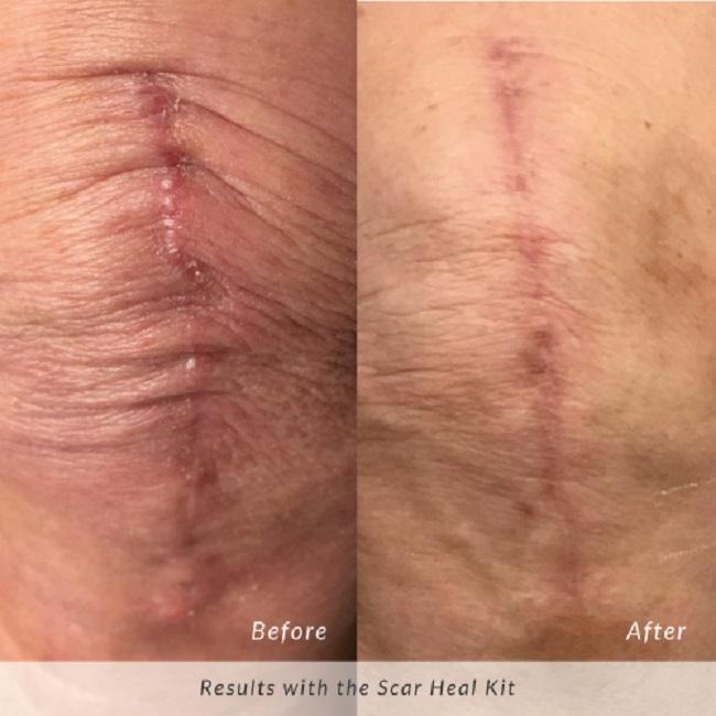 Vết sẹo của anh Vinh Xuân đã được cải thiện đáng kể sau thời gian ngắn sử dụng bộ sản phẩm Scar Heal Kit