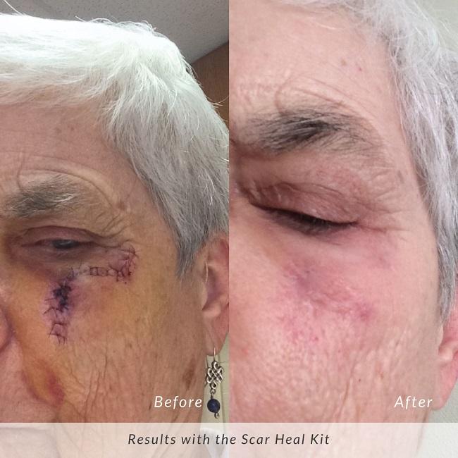 Hiệu quả sử dụng bộ Scar Heal Kit của ông Andrew tại Mỹ