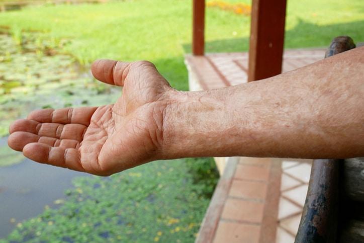 Vết sẹo bỏng trên cánh tay