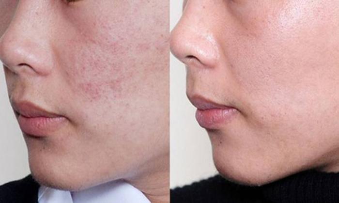Kiên trì sử dụng sau 5 tháng và thành quả của bạn Lâm là làn da  đều màu