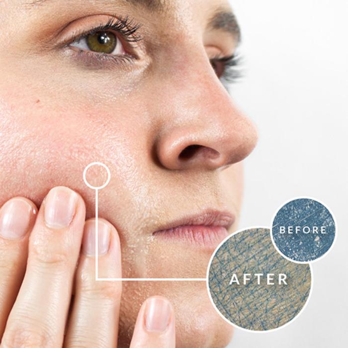 Ô nhiễm môi trường gây nhiều tác hại cho làn da của bạn