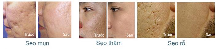 Kem trị sẹo Scar Esthetique hiệu quả tốt với nhiều loại sẹo: sẹo mụn, sẹo thâm, sẹo rỗ