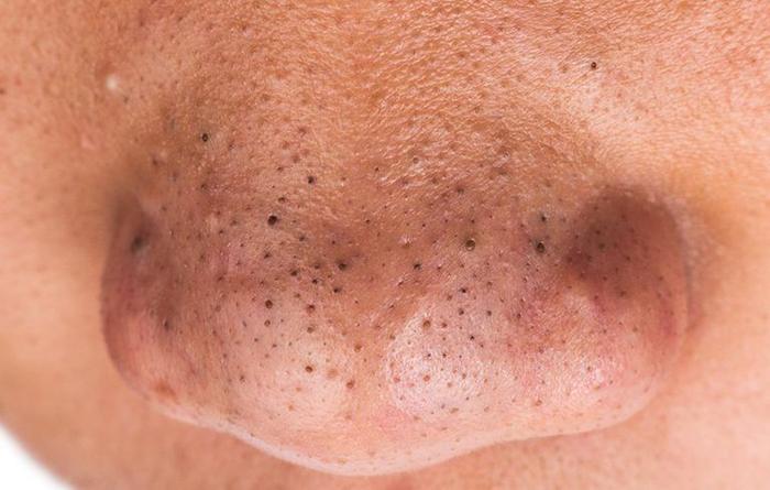 Sẹo rỗ xuất hiện do mụn đầu đen