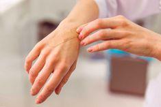 Mách bạn 5 cách liền sẹo nhanh nhất, đơn giản mà hiệu quả ngay tại nhà