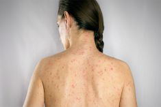 Cách chữa bệnh thủy đậu ở người lớn nhanh khỏi, tránh các biến chứng nguy hiểm