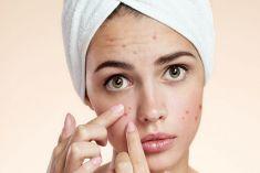 Bật mí 7 cách trị sẹo thâm hiệu quả ngay tại nhà