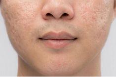 Dễ dàng đánh bay sẹo rỗ do mụn gây ra cho làn da láng mịn nhanh nhất