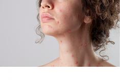 Đâu là cách chữa bệnh thủy đậu nhanh nhất và không để lại sẹo?
