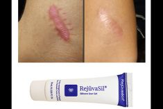 Sử dụng Gel điều trị sẹo Scar Rejuvasil đúng cách- Yếu tố chính đảm bảo tốt nhất hiệu quả