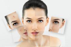 Tại sao cần trị sẹo càng sớm càng tốt?