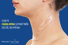 Thương hiệu trị sẹo hàng đầu- Tấm dán trị sẹo Scar FX có an toàn và gây dị ứng không?