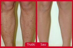 Trị sẹo thâm ở chân chưa bao giờ lại dễ dàng đến thế, bạn đã thử chưa?