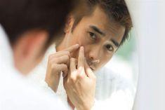 Lấp đầy sẹo thâm, sẹo rỗ do mụn giúp phái mạnh tự tin và manly hơn