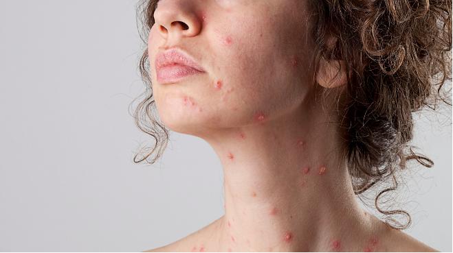 Bệnh thủy đậu xuất hiện do một loại siêu vi có tên varicella zoster virus gây ra