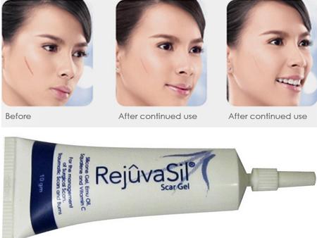 Rejuvasil trị sẹo có thật sự tốt không? Có hiệu quả như quảng cáo không?