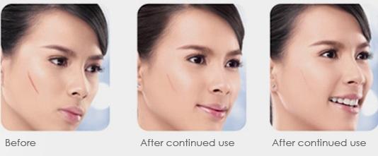 Hiệu quả trước và sau khi sử dụng kem trị sẹo Rejuvasil